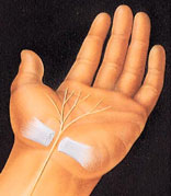 carpal-tunnel-release-morse-dr