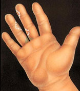 syndactyly-1