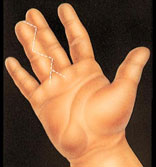 syndactyly-2
